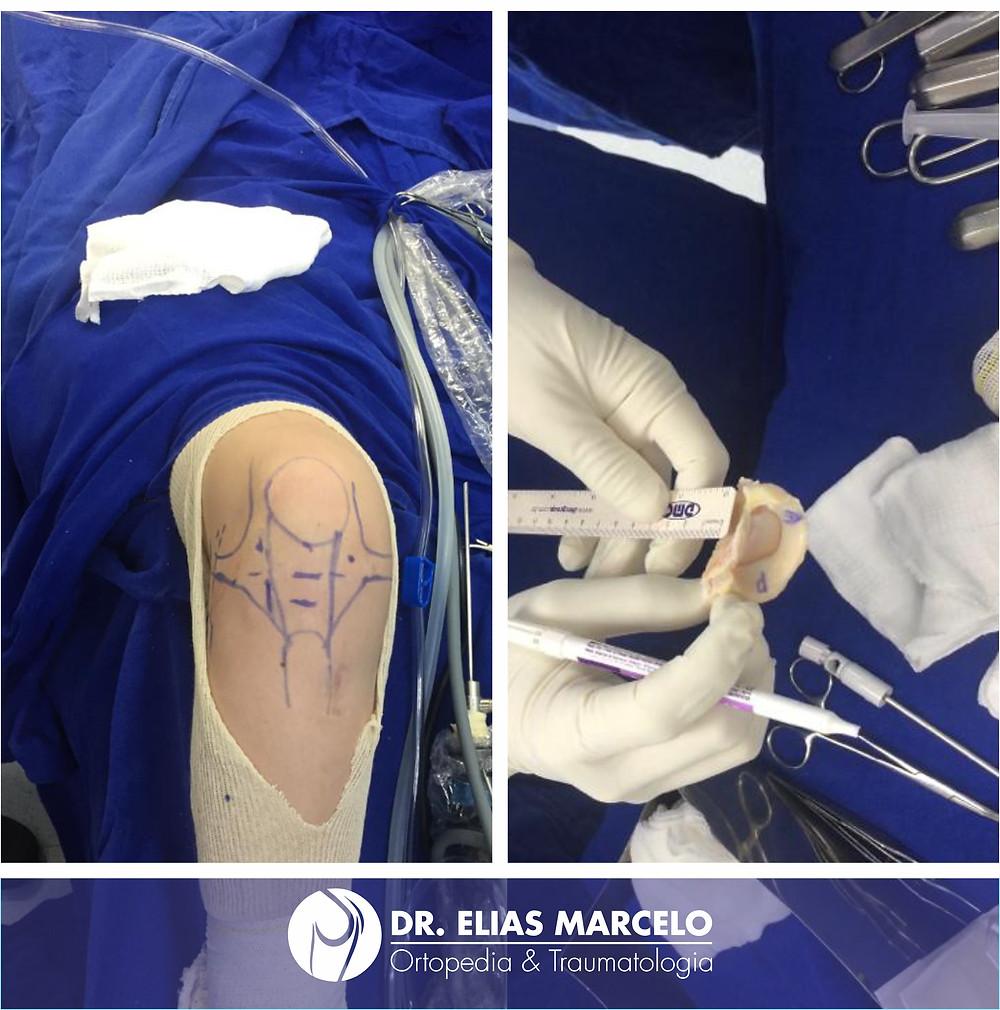 Primeiro transplante de menisco realizado no Hospital do Trabalhador