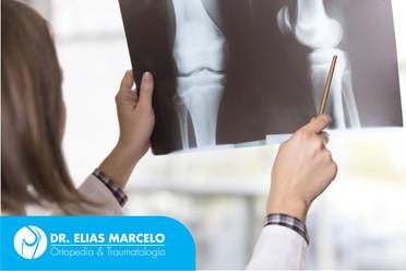 Exames de imagem do joelho