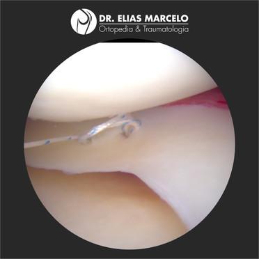Avanços no tratamento da Lesão do Menisco no joelho