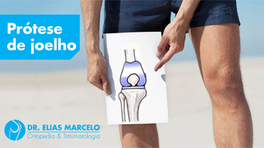Prótese de joelho