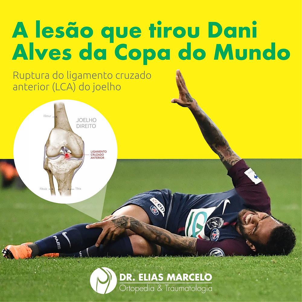 LCA - Lesão Daniel Alves