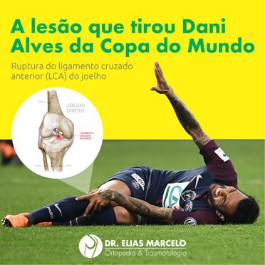 A lesão que tirou Dani Alves da Copa do Mundo
