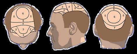 zonas de implante.png