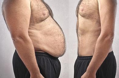 abdominoplastia hombre.jpg