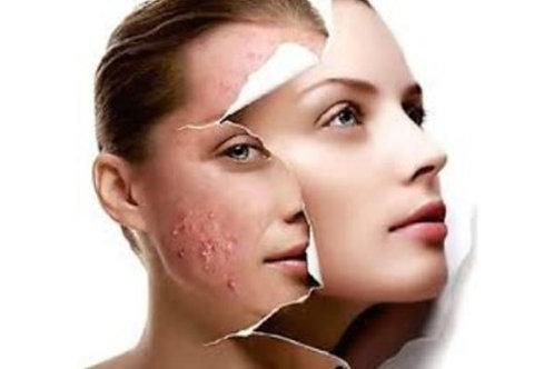 Tratamiento secuelas del acné