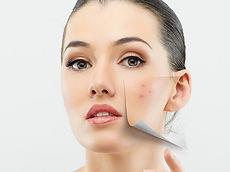 cicatrices de acne.jpg