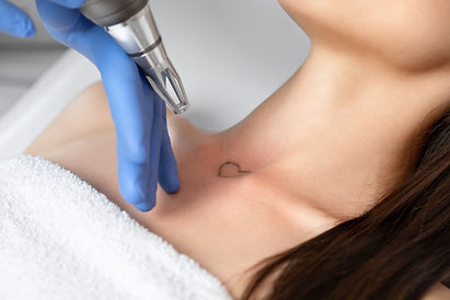 Doctor beautician makes laser tattoo removal on the neck of a young brunette woman in the