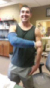 A post surgery patient of San Juan Hand Therapy shows his delta cast, used as a technique to heal his distal biceps tendon rupture and repair