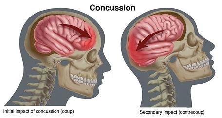 Concussion2.jpg