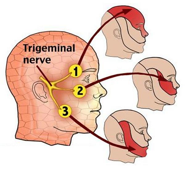 trigeminal-neuralgia-1.png