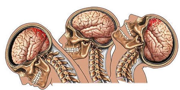 Concussion1.jpg