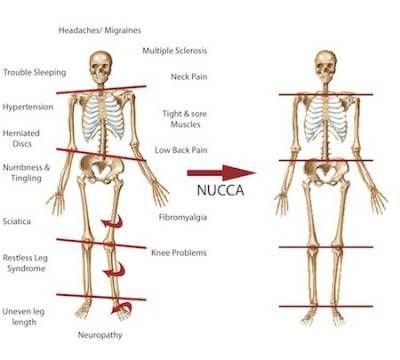 Pre-Post-Posture-Pattern.jpg