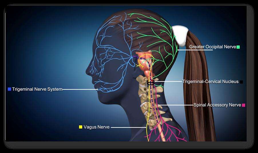 trigeminal-neuralgia-4.png