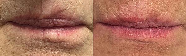 Aufspritzen der Lippen Vorher-Nachher-Bild