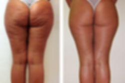 Vorher/ Nachher Bilder Cellulite-Behandlung // Praxis Dr. Seker Aschaffenburg