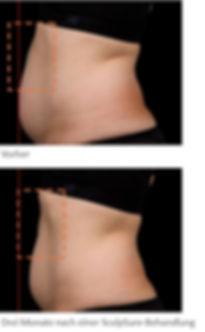 Sculpsure: Fett-weg Laser Vorher-Nachher Bilder Bauch