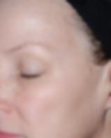 Vorher/ Nachher Bilder Laser-Skin-Resurfacing / Hautverjünung durch Laser Dr. Seker Aschaffenburg