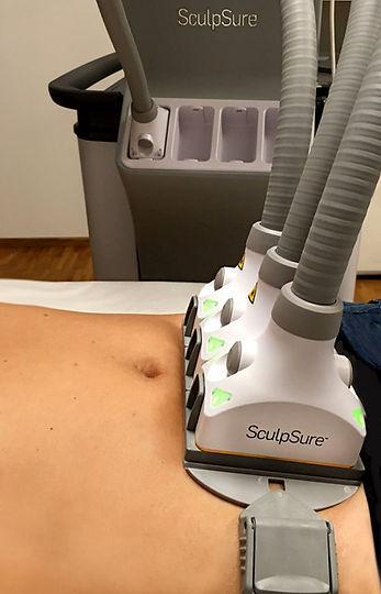 Sculpsure: Fett-weg Laser-Behandlung am Bauch