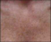 Altersflecken und Pigmentflecken per Laser entfernen: Vorher/ Nachher Bilder