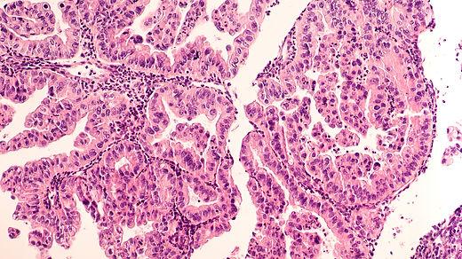 Ovarian Cancer Awareness: Micrograph of