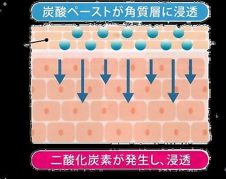 新炭酸パック図.png