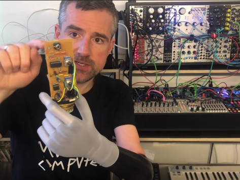 Watch: Man Hacks Prosthetic Arm to Output CV Control to Synthesizers