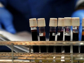 The Importance For Knowing Your Blood Type For The EveryDay Prepper.