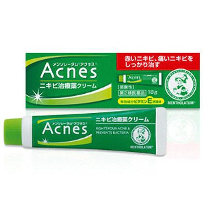 ROHTO Menthoatum Acne's Medicated Treatment Cream 18g