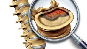 Os tumores da coluna vertebral