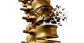 Osteoporose: tratamento aprovado pela ANVISA e FDA
