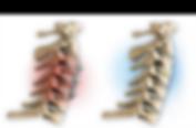 artroplastia1.png
