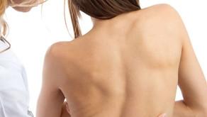 Tratamentos da Escoliose Neuromuscular