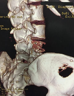 Tumores da coluna.jpg