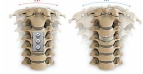 Artroplastia e Fusão Cervical