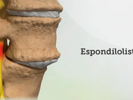 O que é  Espondilolistese?