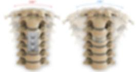 ACDF vs TDR1.jpg