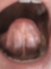 Tongue Tie.png