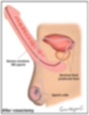 After-Vasectomy.jpg