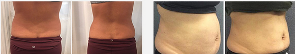 fat loss treatment austin texas.png