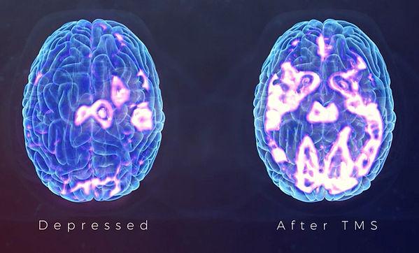 TMS transcranial magnetic stimulation au