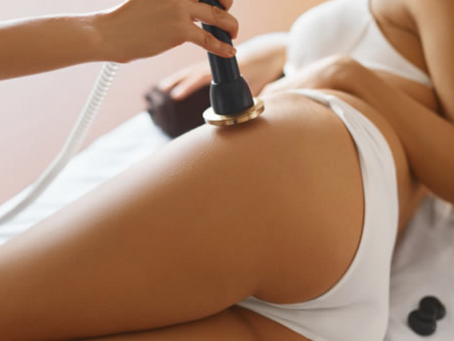 What is Ultrasound Fat Cavitation