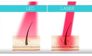 LEDと低出力レーザーの違い
