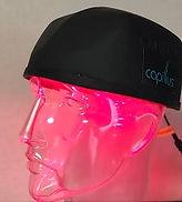 capillus(カピラス)低出力レーザーの照射イメージ