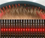 Capillus(カピラス)低出力レーザ―育毛器照射模様