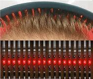 バンド型低出力レーザー育毛器