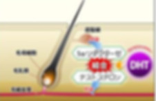 AGA型脱毛症はDHTが増加することで生じる薄毛減少