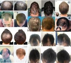 AGA(男性型脱毛症)・FAGA(女性型脱毛症) 以外での育毛効果