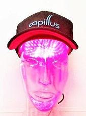 低出力レーザ―育毛器Capillus(カピラス)の照射模様