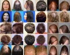 髪が生える原理は性別や人種を問わず、同じです