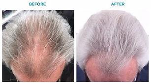 capillus whitehair before after.jpg